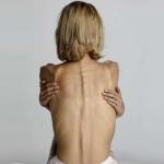 Какие существуют виды анорексии?