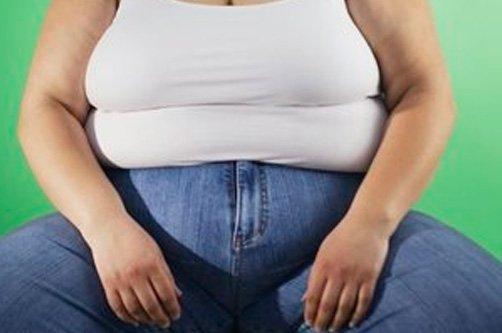 как выглядит ожирение фото