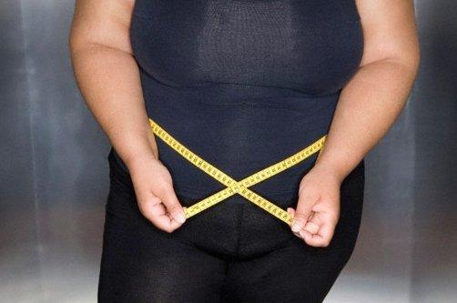 ожирение у женщин фото