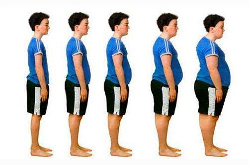 степени ожирения фото