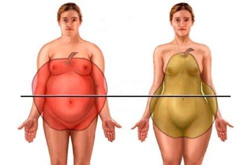 типы ожирения фото