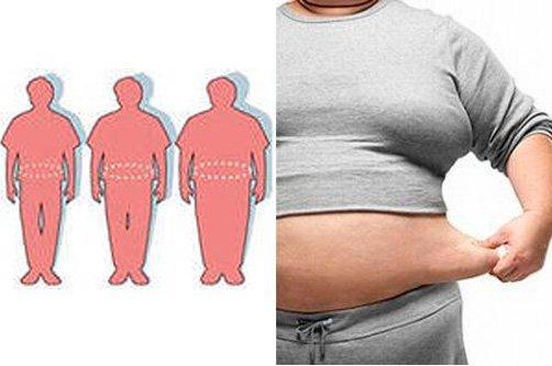 ожирение живота фото