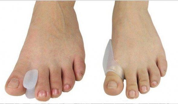 Удаление косточек на ногах лазером