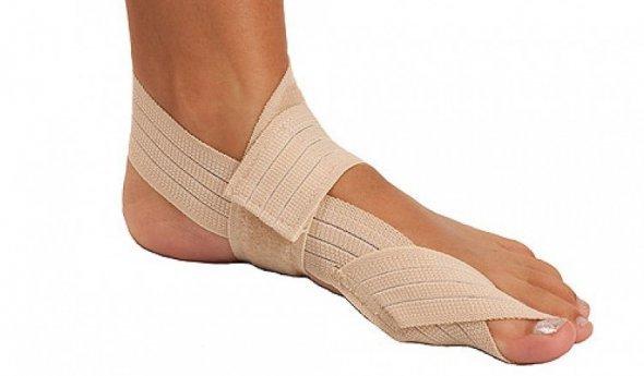 Косточка на ноге лечение причины возникновения стадии